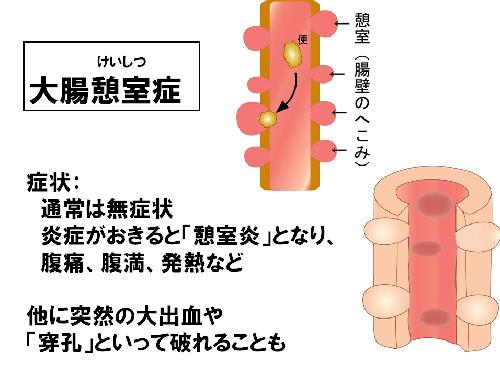 大腸 憩室 炎 再発